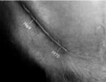 bobby-orr-scars.jpg