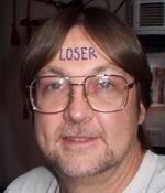 loser-forehead.jpg